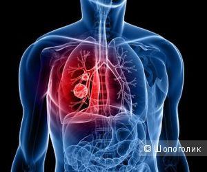 Бронхит: симптомы, диагностика, методы лечения